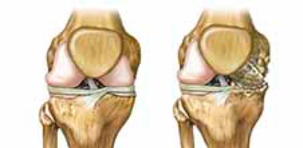 Arthrosis, Arthritis, and Arthralgia