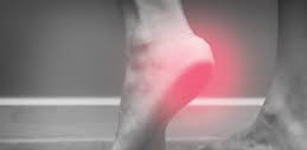 Heel Spurs and Other Foot-Related Pain